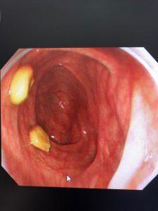大腸内視鏡検査とお野菜たち🥬🍅🍄